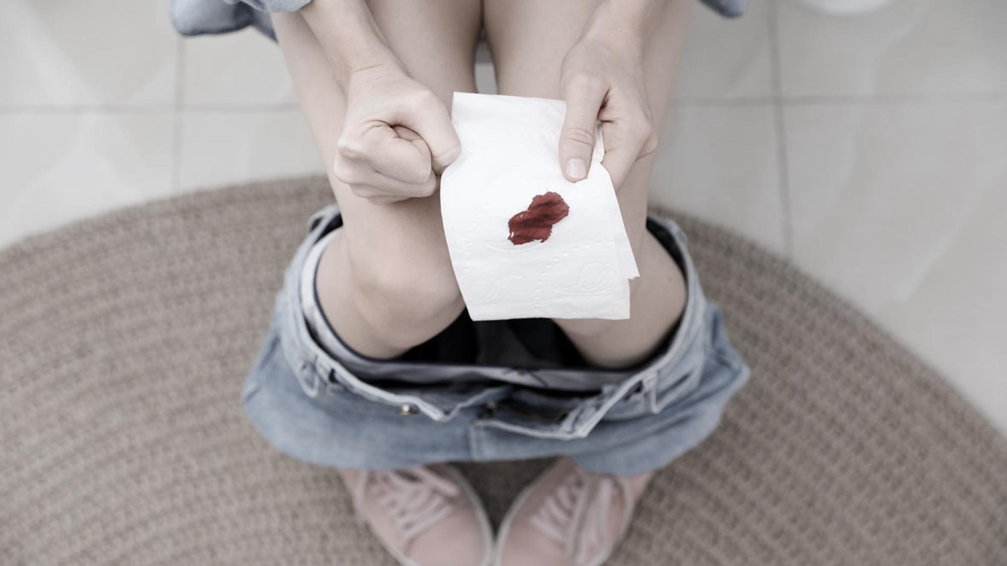 Hellrote blutung nach konisation