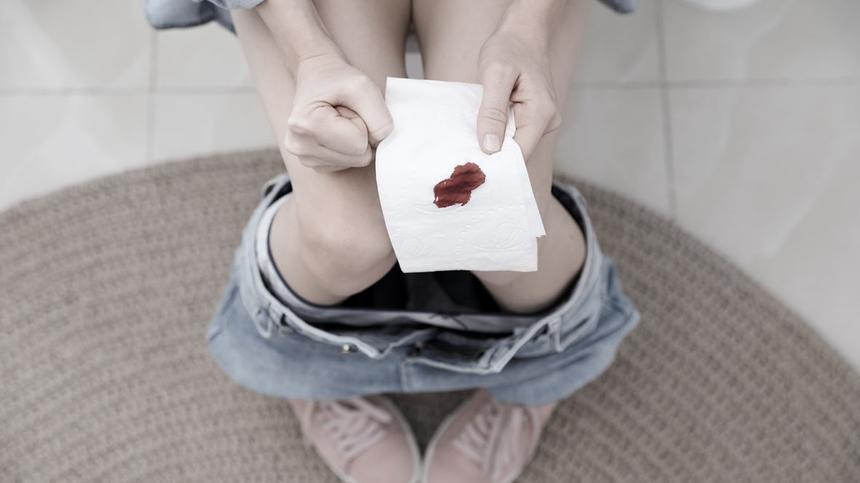 Schmierblutung