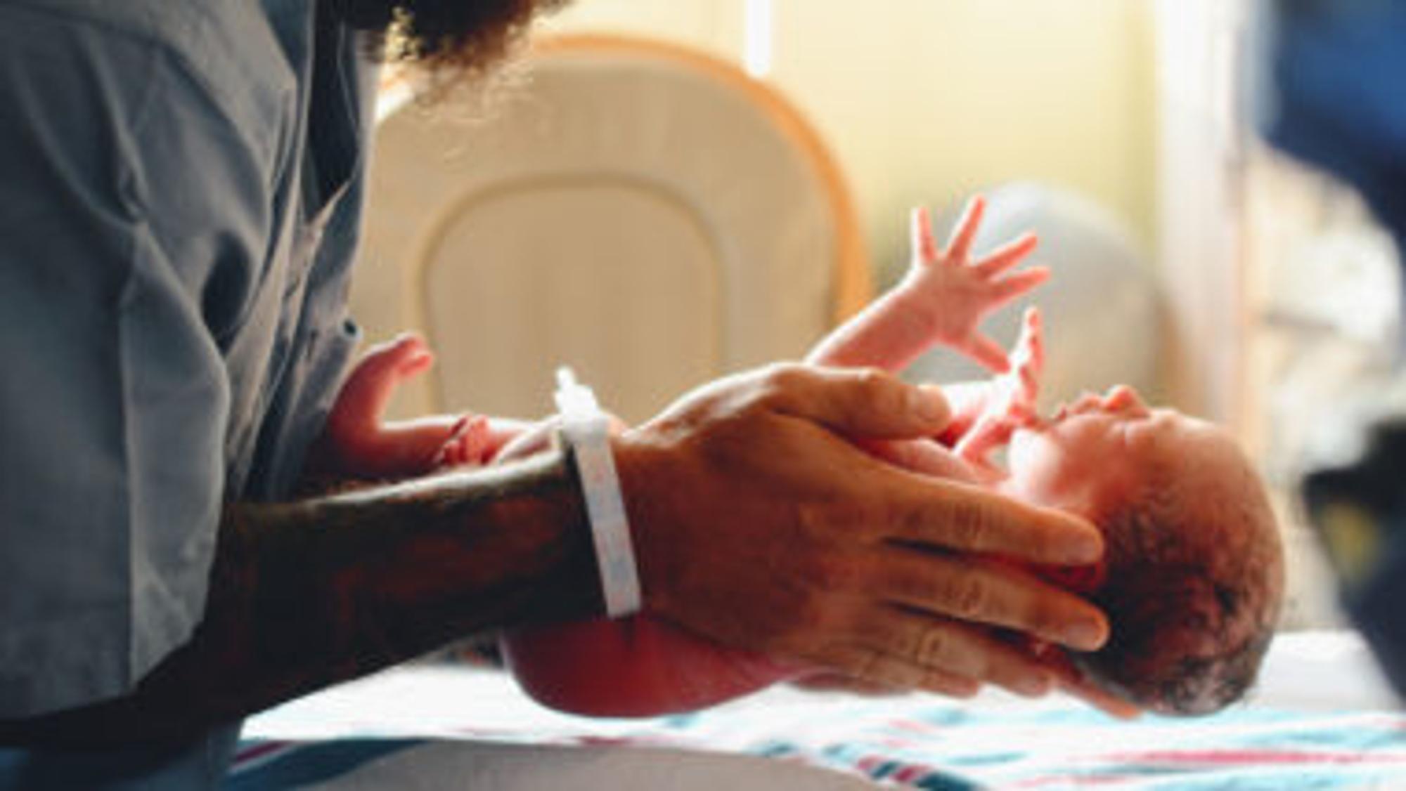 Bild eines Babys direkt nach der Geburt
