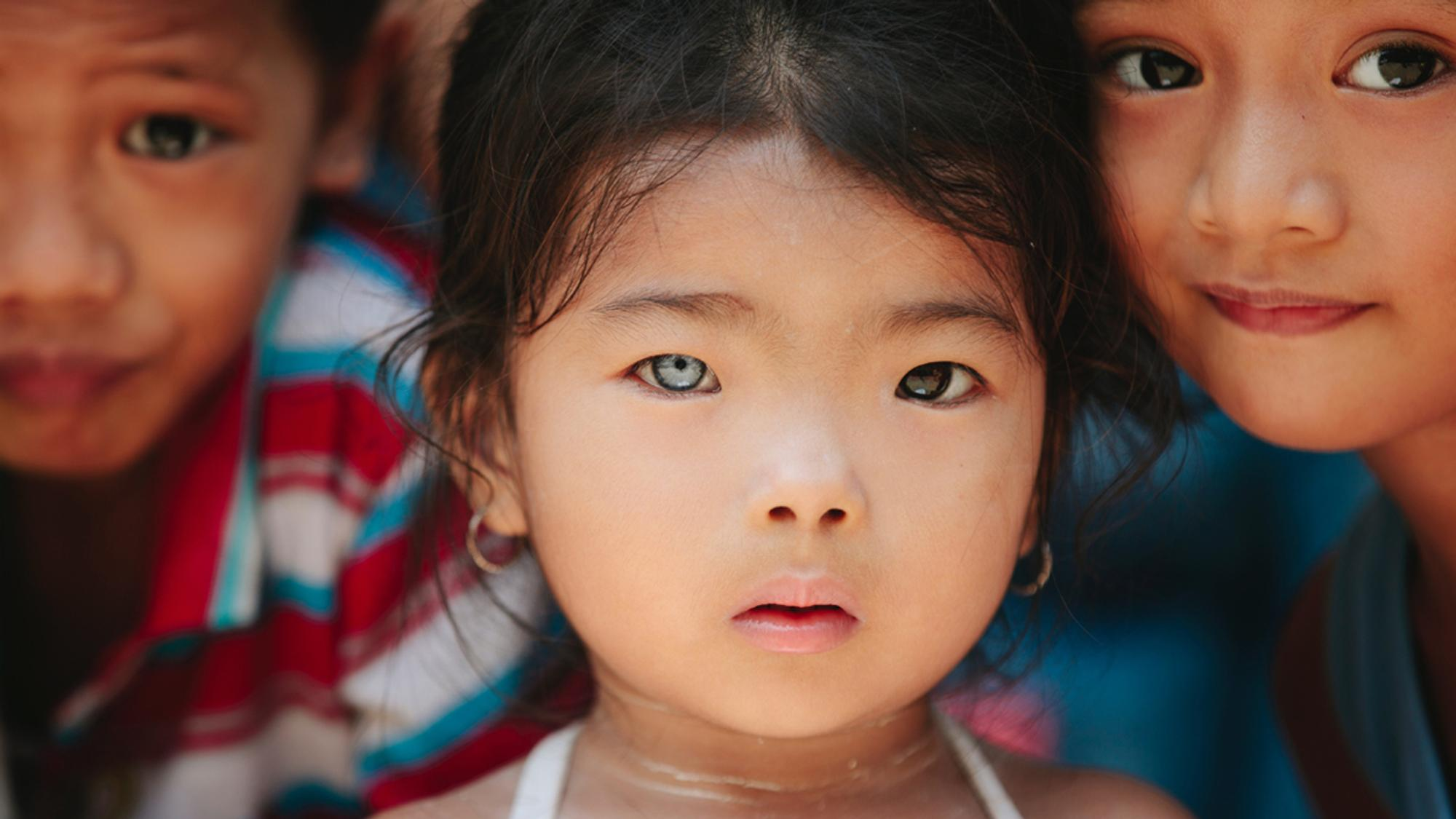 Mädchen mit einer Iris-Heterochromie