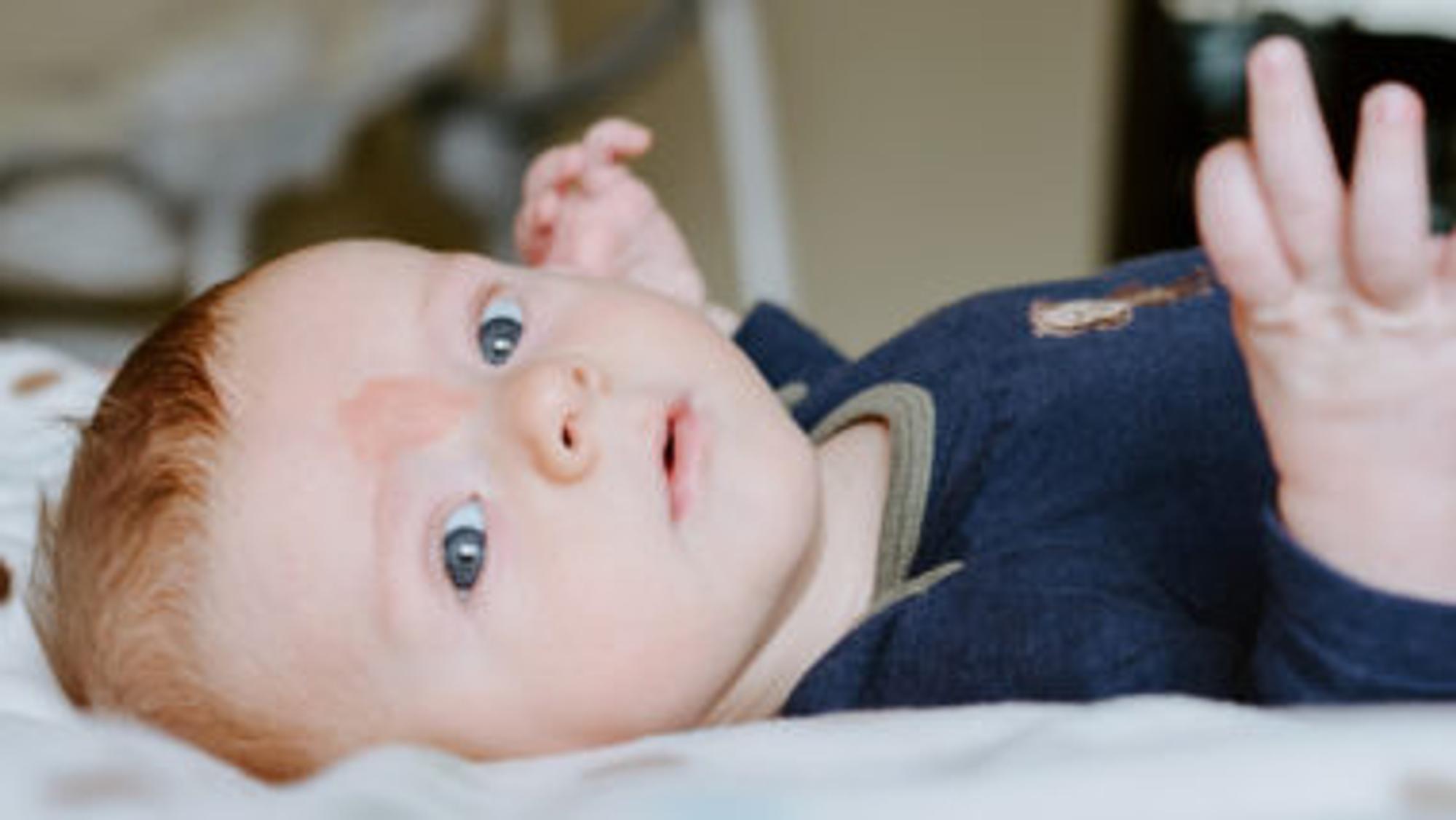 Baby mit Storchenbiss auf der Stirn