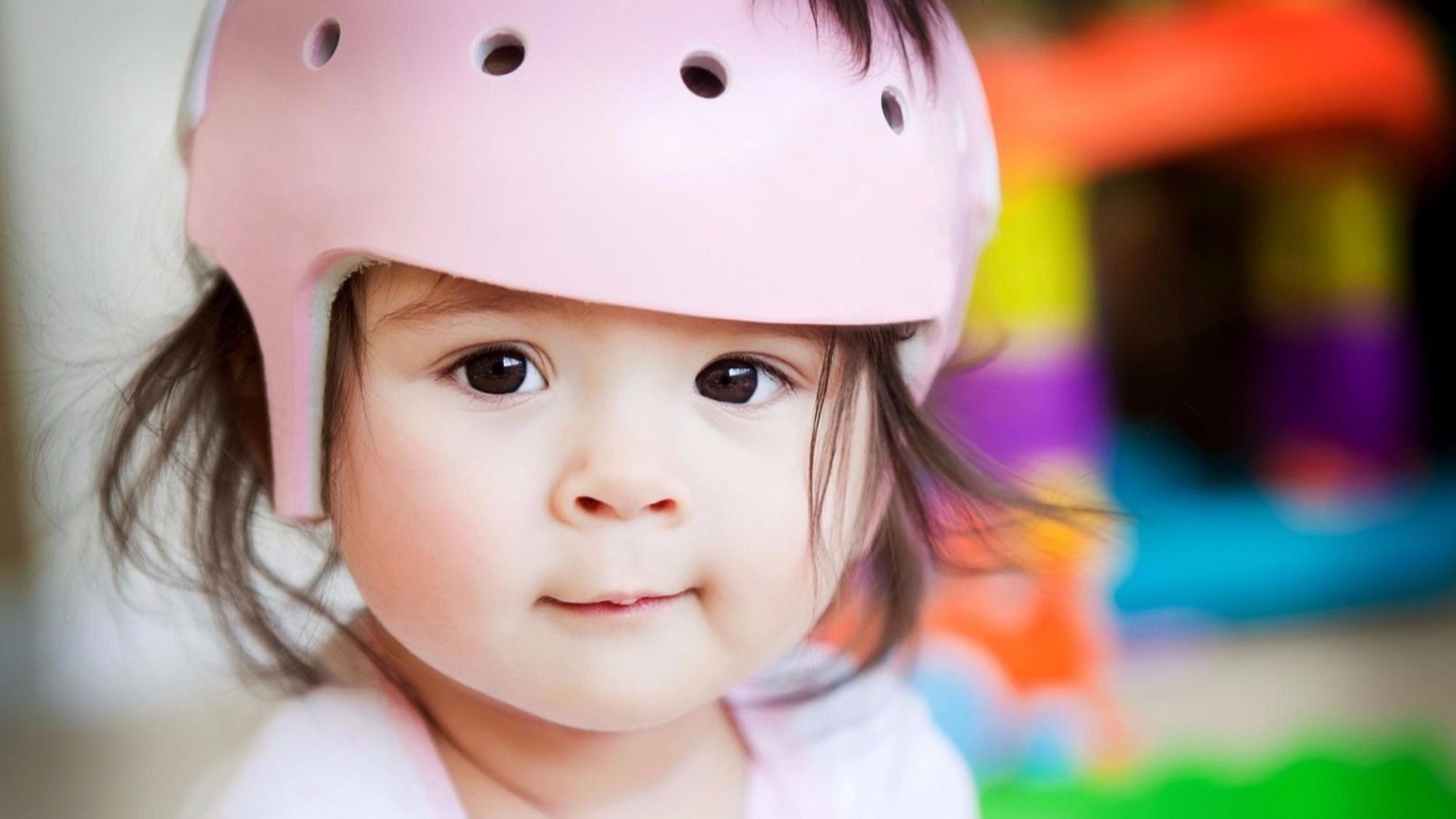 Bei einer Plagiozephalie müssen Babys Kunststoffhelme tragen