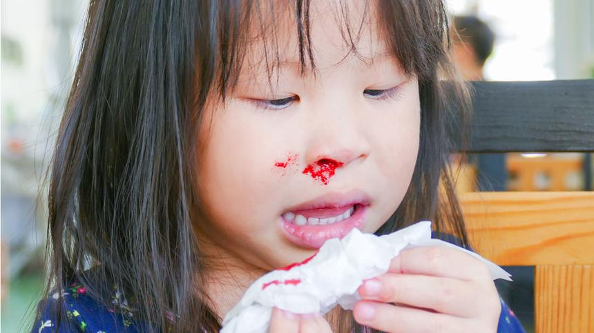 Was du über Nasenbluten wissen musst.