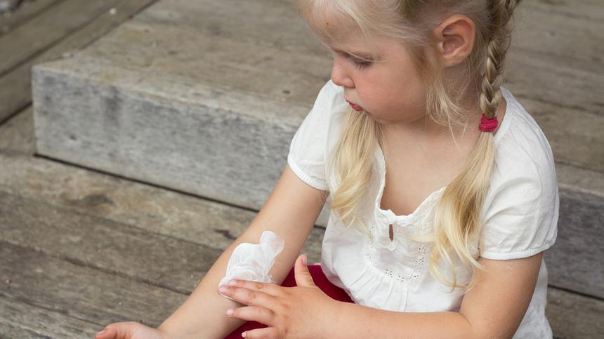 Bei Borkenflechte sollten Kinder unbedingt vermeiden, die juckenden Stellen zu kratzen.