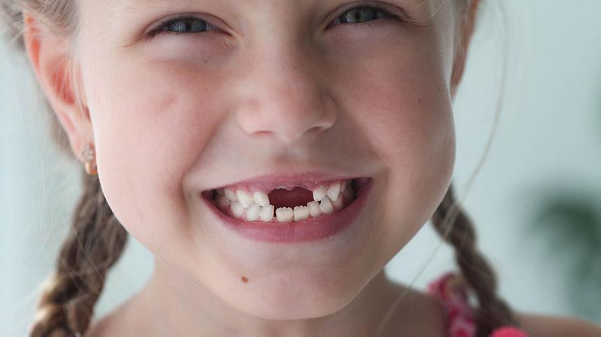 Der erste Wackelzahn » Infos zum Zahnwechsel - Hallo Eltern