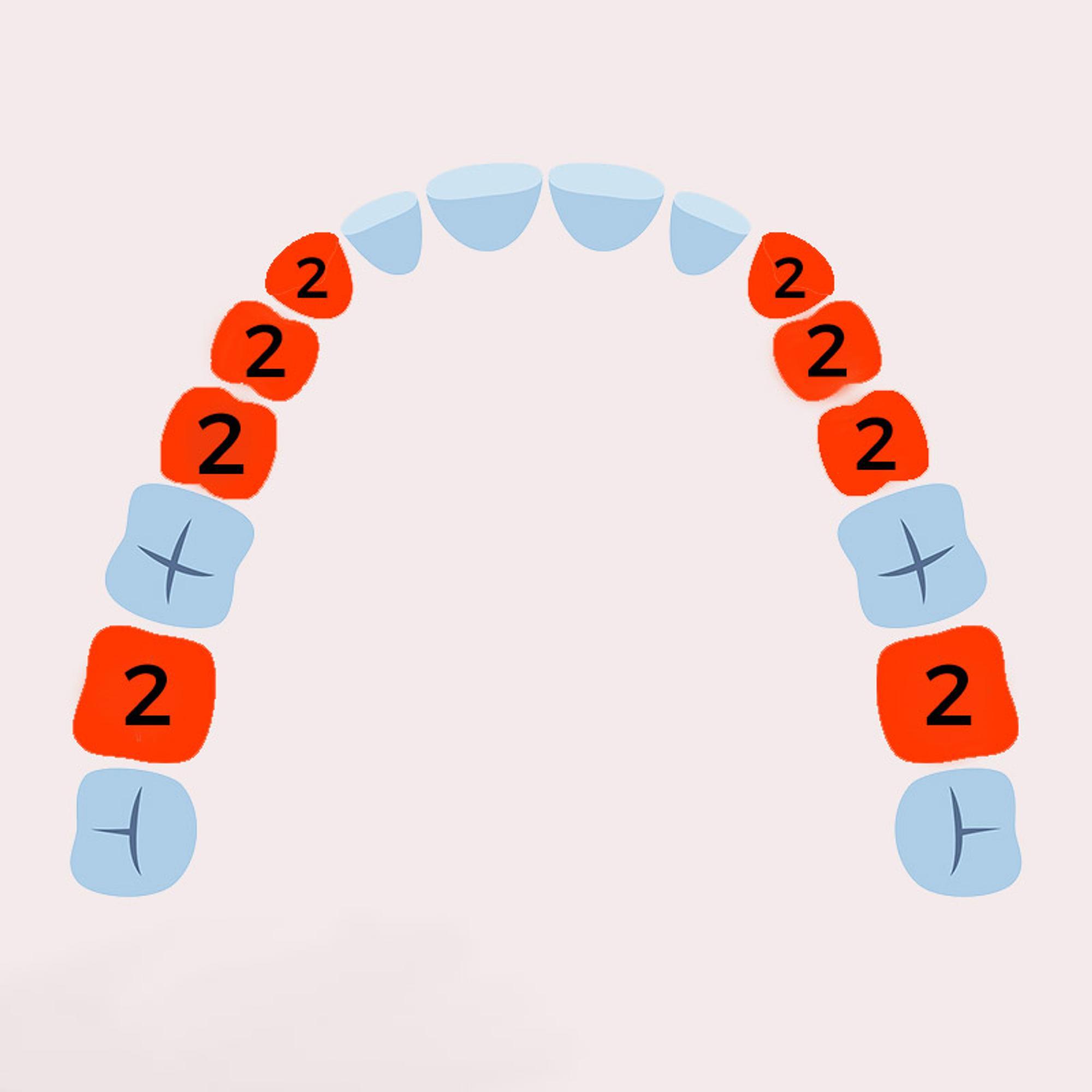 Zahnwechsel 2.Phase